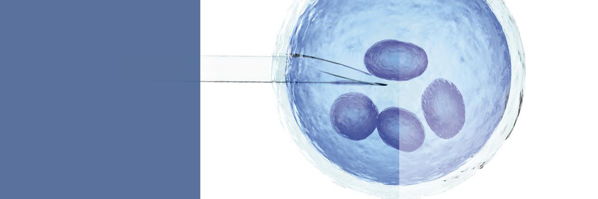 IVF - Fecondazione coniugale in vitro