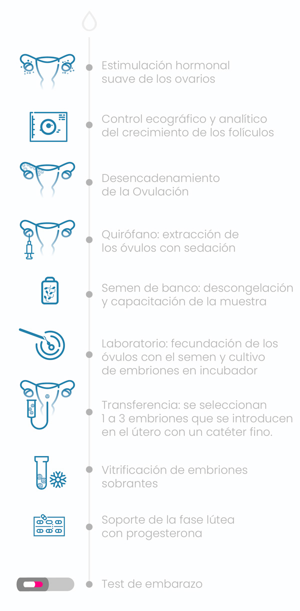 Fecondazione in vitro - Fecondazione in vitro con lo sperma del donatore